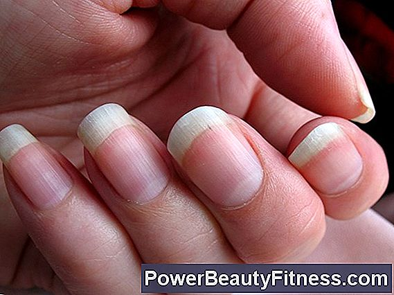 Black Lines In Nails - Best Nail ImageBrain.Co