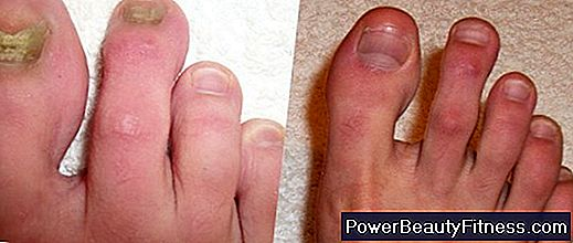 Over The Counter Medications For Toenail Fungus 💪💪 All About ...