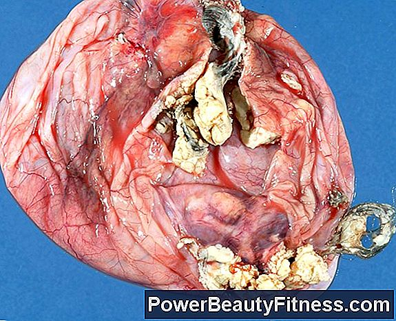 How Are Ovarian Cysts Formed?
