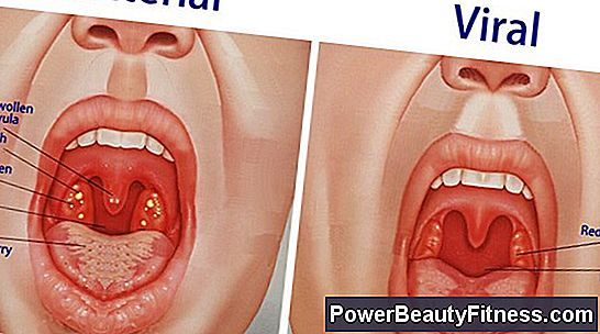 Signs And Symptoms Of Swollen Tonsils All About Fitness And