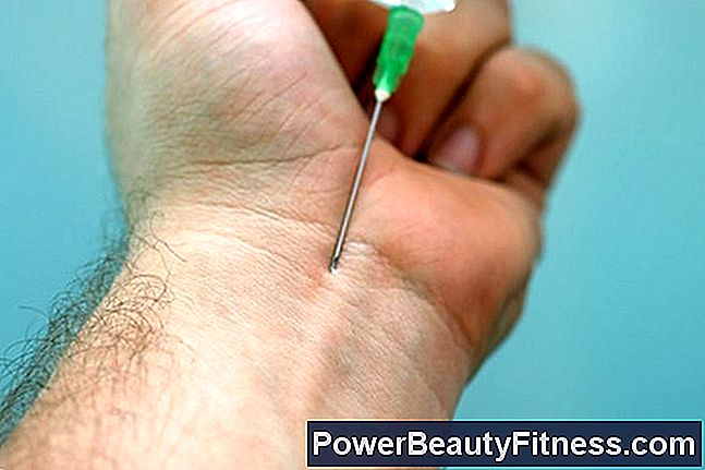 How Long Is A Cortisone Injection