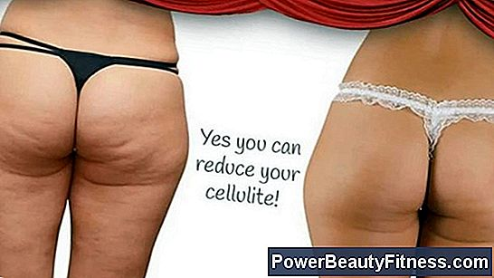 Exercises To Remove Cellulite From The Back Of The Legs
