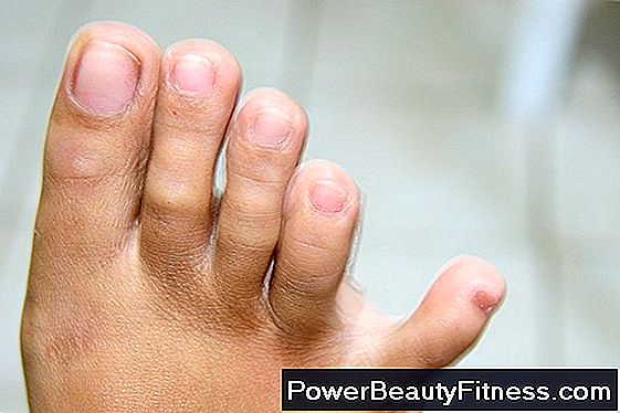 What Are The Causes Of Burning In The Feet?