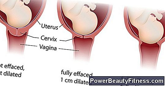 Can I Do Exercises If I Have Low Placenta?