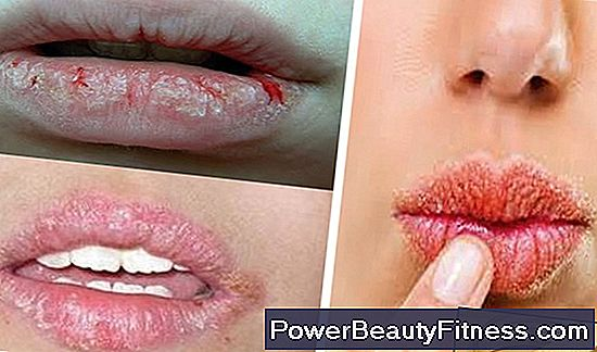 Causes Of Dry And Chapped Lips