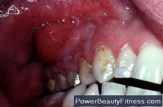 Gums Swollen By Sinus Infection
