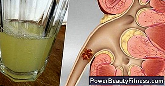 Home Remedies For Kidney And Bladder Infections