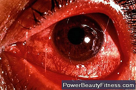 How Is Conjunctivitis Spread?