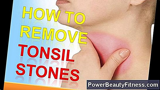 How To Get Rid Of Tonsil Stones Naturally