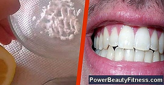 How To Whiten Your Teeth In Minutes Naturally