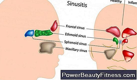 Inflamed Sinus Symptoms