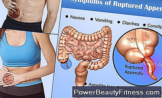 Symptoms Of A Ruptured Appendix
