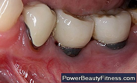 What Are The Treatments For Inflammation Of Painful Gums?