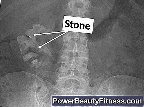 What Is The Average Size Of Kidney Stones?
