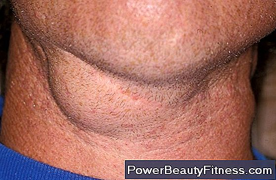 Swollen Lymph Nodes In The Neck After Eating