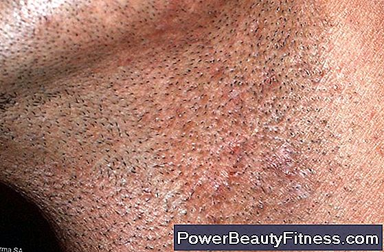 What Are The Causes Of Pimples In The Genital Area