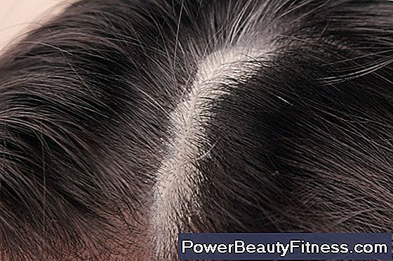 How To Reduce The Sweat Of The Scalp