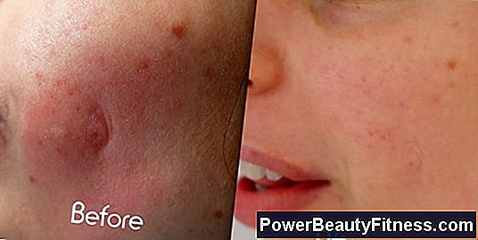 Does Mederma Work On Acne Scars?