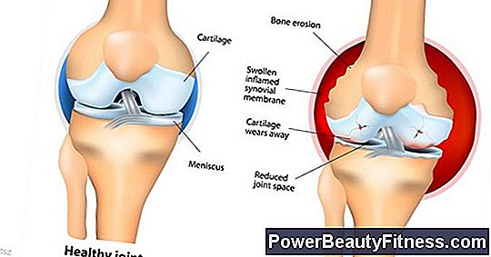 Can The Hip Joint Affect The Knees?