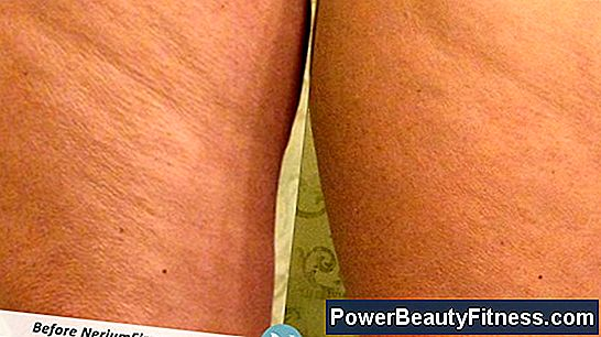 How To Firm Up The Thighs And Get Rid Of Cellulite