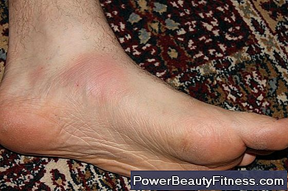 My Feet Feel A Tingling Sensation During Exercise