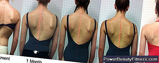 How To Correct Mild Scoliosis