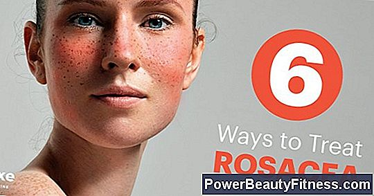 Natural Treatment For Acne With Rosacea