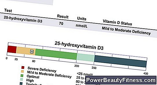 What Is The Normal Range Of Vitamin D In A Blood Test?