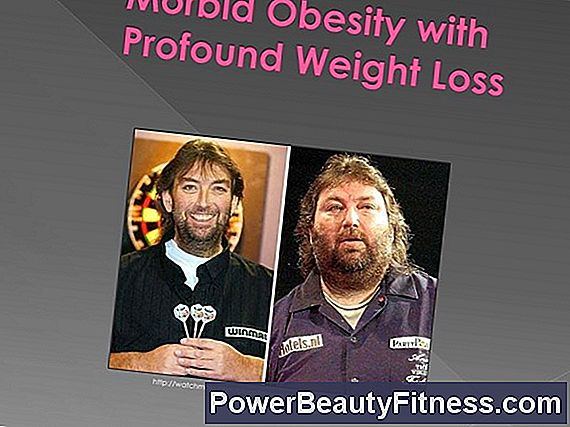 Morbid Obesity And Weight Loss