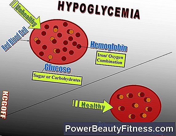 How To Control Hypoglycemia Through Diet