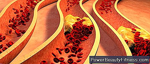 What Foods Can Cause The Buildup Of Plaque In The Arteries?