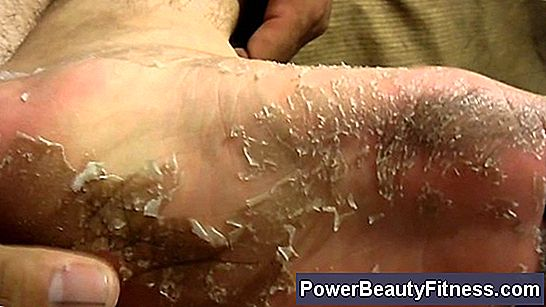 Skin Peeling And Cracked