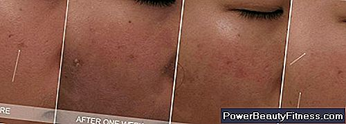 Treatments For Large Pores In The Nose