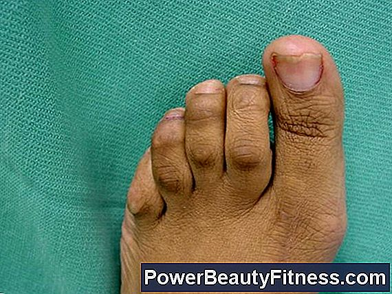 What Makes The Bunions Worse?